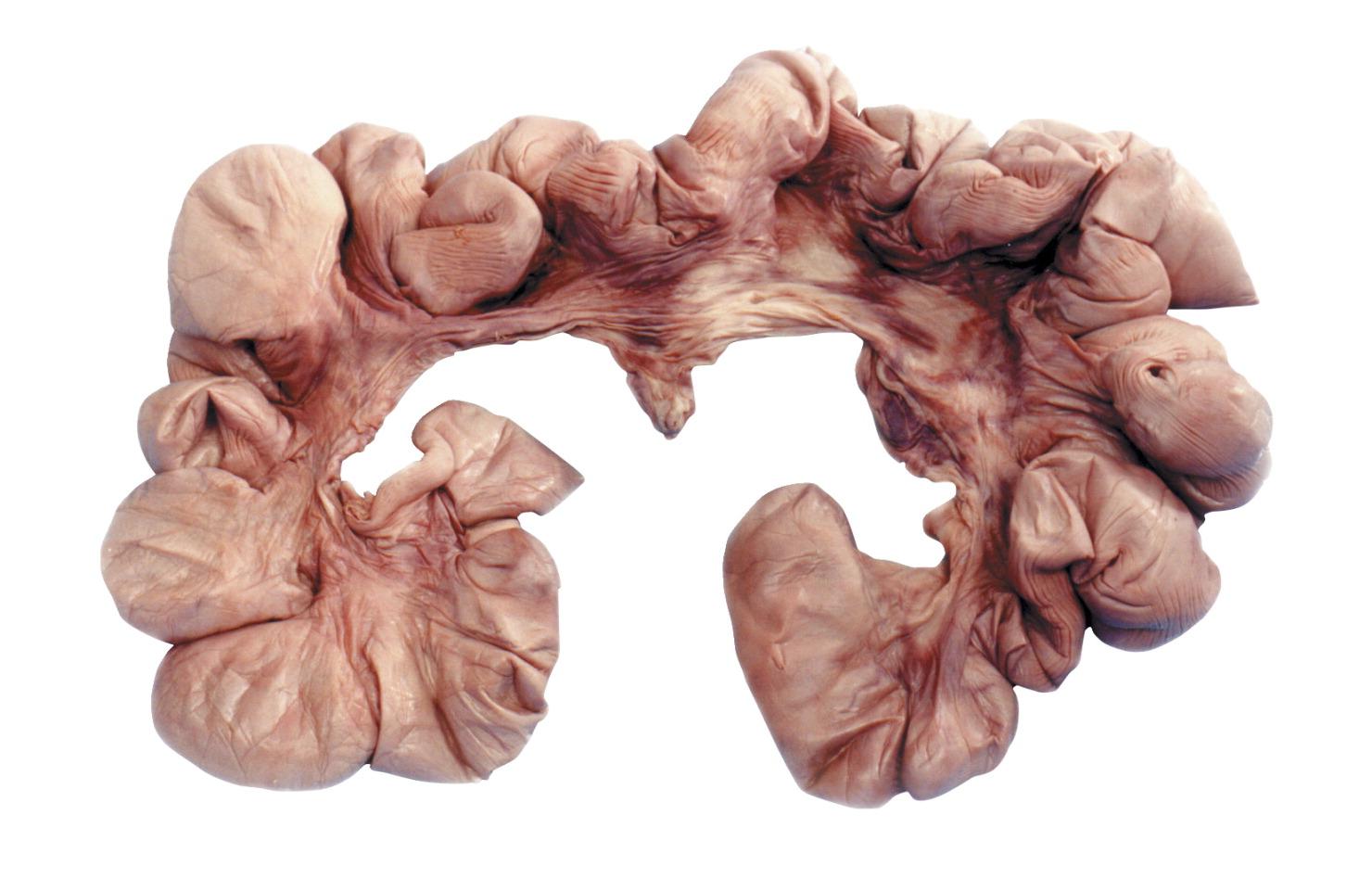 Preserved Pig Organs - FREY SCIENTIFIC & CPO SCIENCE